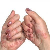 اگزما و خشکی دست